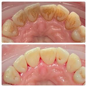 Чистка налета и зубного камня